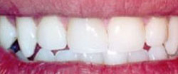 Marin Dentistry Before & After